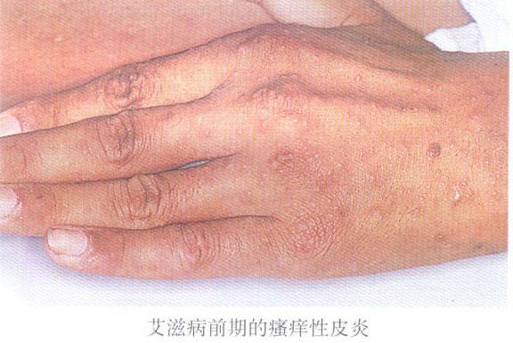 手部瘙痒性皮炎